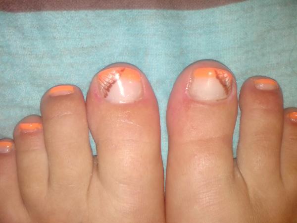 Le traitement des ongles chez lenfant de 7 années